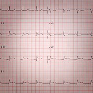 Interview minutée de Dany Boon : electrocardiogramme © Annick Holtz